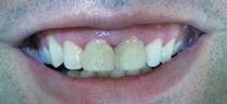 Before - Laser Gum Lift