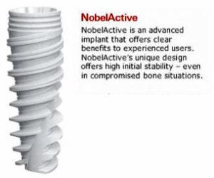 Nobel Biocare – Active Dental Implants