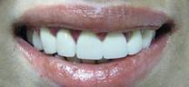 After - Laser Gum Lift