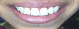 Gummy Smile correction with Laser Gum Lift - After