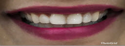 Smile Improvement with Zoom Whitening and Contouring - After