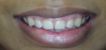 Laser Gummy Smile Correction - Before