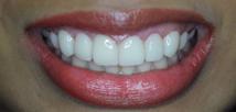 Laser Gummy Smile Correction - After