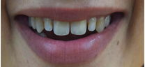 Teeth Gap Closure - Before