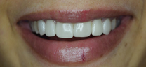 Teeth Gap Closure - After