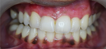 Laser Gums De Pigmentation - After