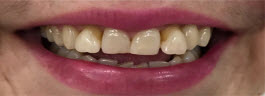Teeth Alignment Correction with Porcelain Veneers - Before