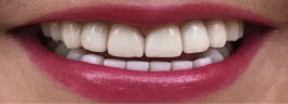 Teeth Alignment Correction with Porcelain Veneers - After