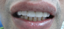 Cosmetic Tooth Colored Fillings - After