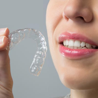 Cost of Aligners