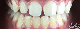 Crooked Tooth Correction - After