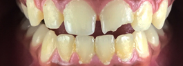 Crooked Tooth Correction - Before