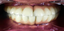 Full Mouth Rehabilitation with 12 Implants and 24 Units of Bridges - After