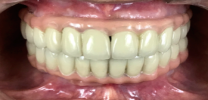 Full Mouth Rehabilitation with Dental Implants - After