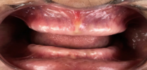 Full Mouth Rehabilitation with Dental Implants - Before