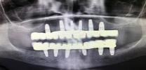 Full Mouth Rehabilitation with Dental Implants - Xray