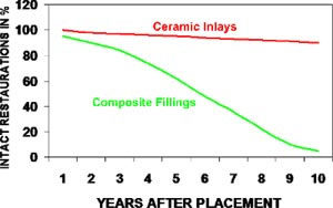 ADVANTAGES OF CERAMIC INLAYS