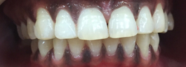 Laser Gums De Pigmentation - Before