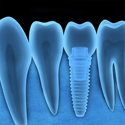MISSING TEETH REPLACED WITH DENTAL IMPLANTS