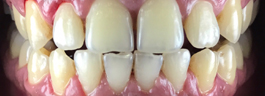 Teeth Whitening - Before