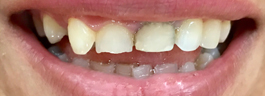 Mottling of Teeth Corrections - Before