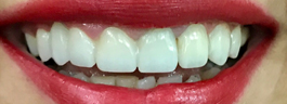 Mottling of Teeth Corrections - After