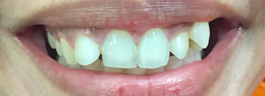 Gap Closure with Porcelain Veneers & Crowns - Before
