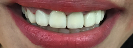 Gap Closure with Porcelain Veneers & Crowns - After