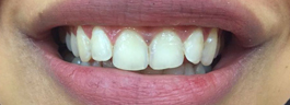 Gap Closure with Porcelain Veneers - Before