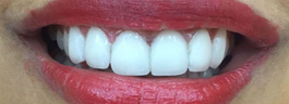 Gap Closure with Porcelain Veneers - After