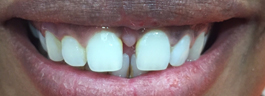 Gap Closure with Porcelain Veneers on Upper Centrals - Before