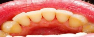 Scaling Polishing Teeth Cleaning - After