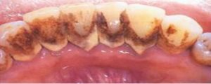 Scaling Polishing - Teeth Cleaning - Before