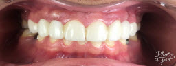Smile Makeover with Metal Free E-Max Crowns - After
