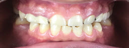 Smile Makeover with Metal Free E-Max Crowns - Before