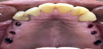 Upper Back Multiple Teeth Implants - Before
