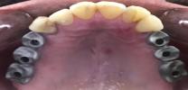 Upper Back Multiple Teeth Implants - Implant