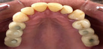Upper Back Teeth Restored with Dental Implants and Screw Retained Crowns - After