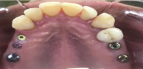 Upper Back Teeth Restored with Dental Implants and Screw Retained Crowns - Before