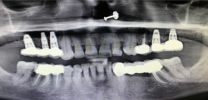Upper Back Teeth Restored with Dental Implants and Screw Retained Crowns - Xray