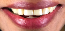 Upper Tooth Single Dental Implants After