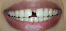 Gap Closure with Metal Free Crowns - Before