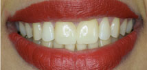 Gap Closure with Metal Free Crowns - After
