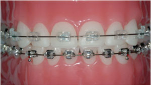 Braces (Metallic or Tooth Colored Ceramic)