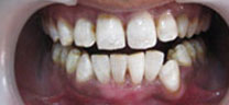 Cosmetic Dentistry - After