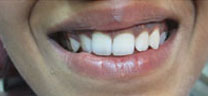 Cosmetic Dentistry - Before