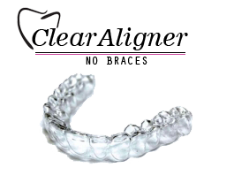 clear aligners - invisible braces near me