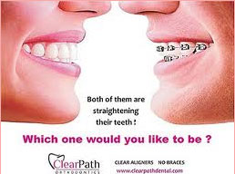 Clear Aligners Invisible Braces