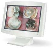 Digital Dental Technology
