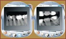 Digital RVG X-rays